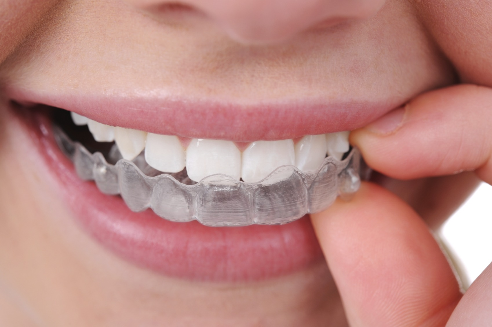 Staying Safe and Healthy with Clear Aligners During COVID-19